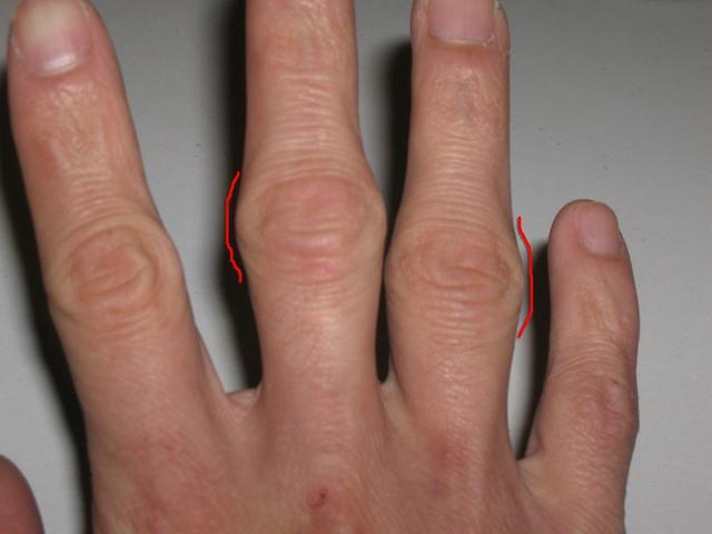 Ревматоидный артрит пальцев рук: первые симптомы, диагностика и лечение