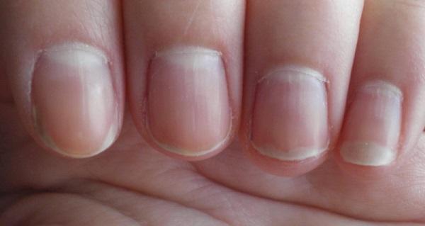 Почему покраснели ногти на руках