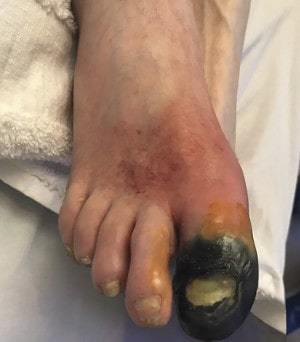 Болезнь бюргера или облитерирующий эндартериит