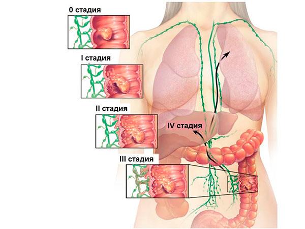 Что можно кушать после операции непроходимость кишечника