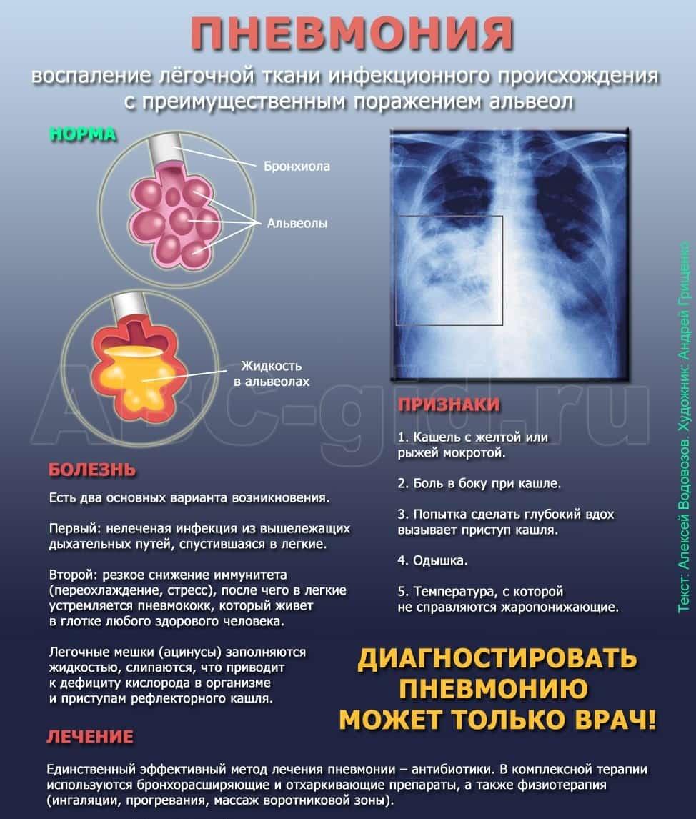 Пневмония и простатита что делать при простатите фото