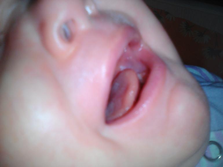 Капли кандид при молочнице во рту у ребенка - запись пользователя мария (id1494393) в сообществе здоровье новорожденных в категории заболевания полости рта. - babyblog.ru