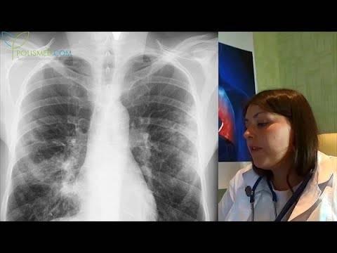 Как распознать пневмонию на флюорографии