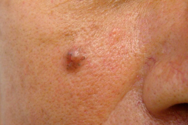 Базалиома кожи лица фото лечение