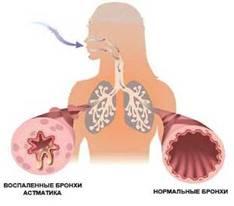 Лфк при лечении бронхиальной астмы у детей и взрослых: виды упражнений