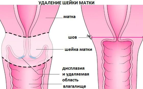 Дисплазия шейки матки: симптомы, степени – легкая, тяжелая, умеренная, лечение