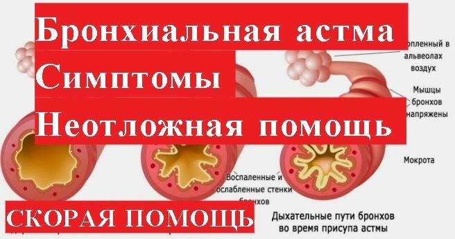 Приступ астмы: симптомы, что делать? как снять приступ больному без лекарств?