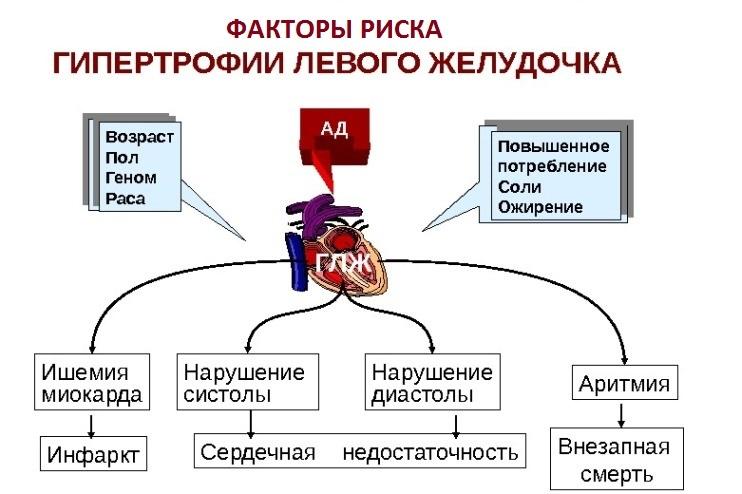 Гипертрофия левого желудочка сердца – чем опасна патология, как ее выявить и лечить?