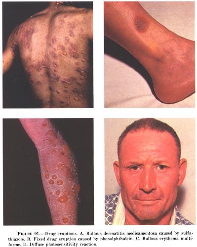 Токсико аллергический дерматит лечение