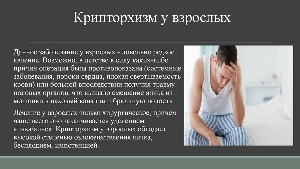 Симптомы крипторхизма и возможные причины появления патологии