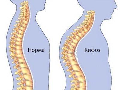 Лечение кифоза: упражнения, лфк при кифозе