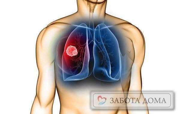 Причины застойной пневмонии у лежачих больных: симптомы и лечение