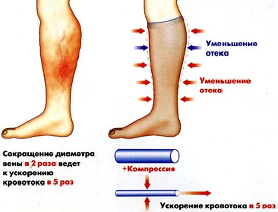 Лимфостаз (лимфедема) - симптомы  и лечение