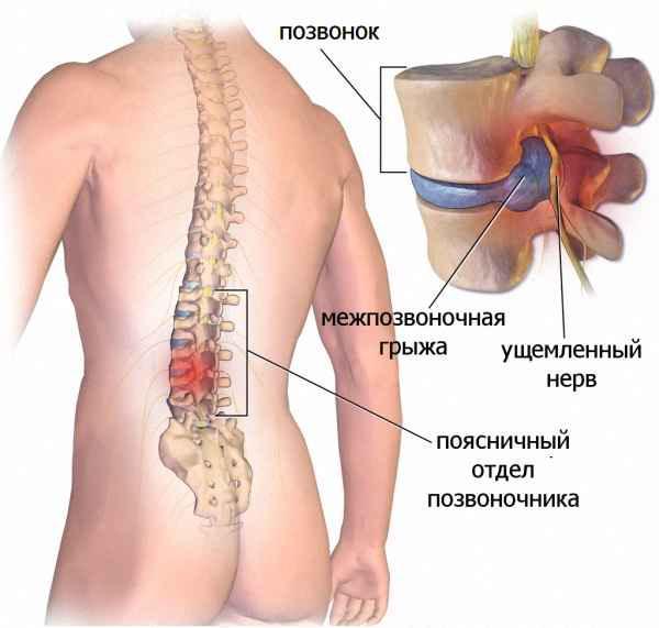 О чем говорит появления боли в спине справа