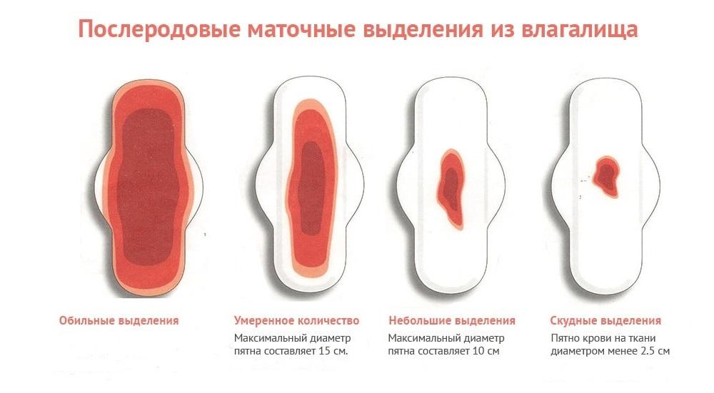 Кровянистые выделения после кесарева сечения (лохии): сколько длятся, какие они должны быть?