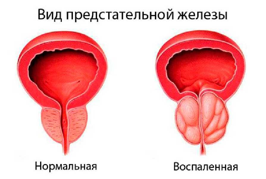 Простатит и аденома простаты. в чем разница?