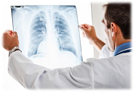 Как отличить вирусную пневмонию от бактериальной?