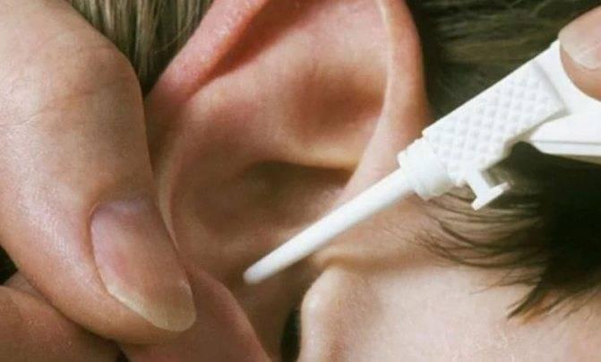 Болит ухо как лечить в домашних условиях камфорное масло