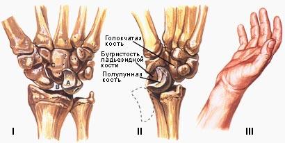 Перелом лучевой кости руки (перелом луча в типичном месте)