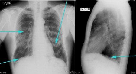 Застойная пневмония у лежачих больных: лечение в домашних условиях