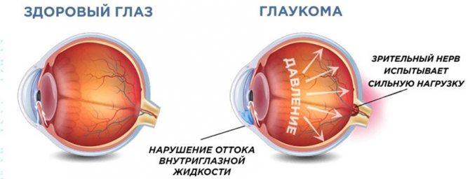 5 основных симптомов внутриглазного давления