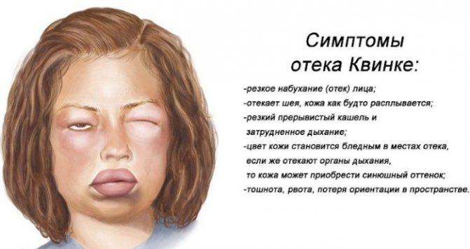 Как выглядит крапивница у ребёнка: причины появления, основные симптомы и неотложная помощь при внезапном развитии заболевания
