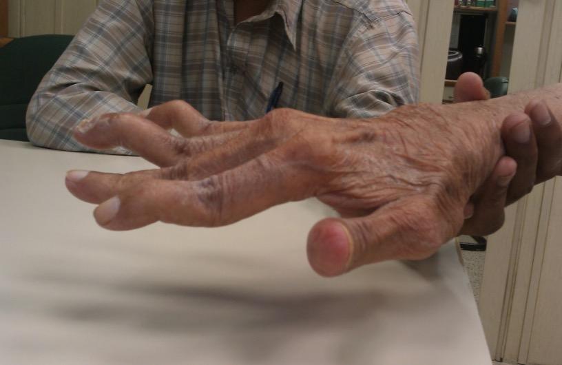 Ревматоидный артрит – симптомы, диагностика и лечение серонегативного, серопозитивного видов артрита