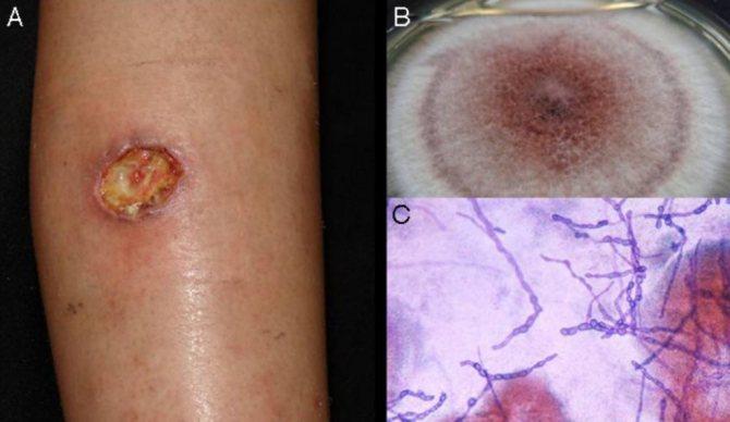 Микоз гладкой кожи: симптомы и лечение
