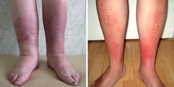 Рожистое воспаление кожи, болезнь рожа на ноге, руке, лице – лечение