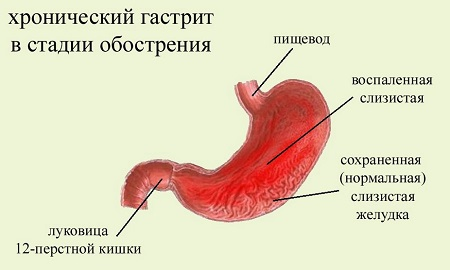 Диета при разных формах хронического гастрита желудка