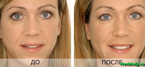 Преимущества hyaluron pen - vbg-cosmetic