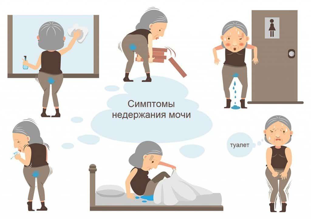Недержание мочи при кашле - причины и лечение