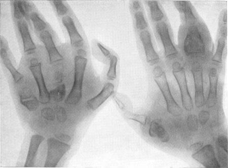 Туберкулез костей и суставов