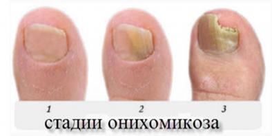 Онихомикоз (грибок ногтей). причины, симптомы, признаки, диагностика и лечение патологии