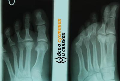 Остеохондропатия ладьевидной кости стопы: причины