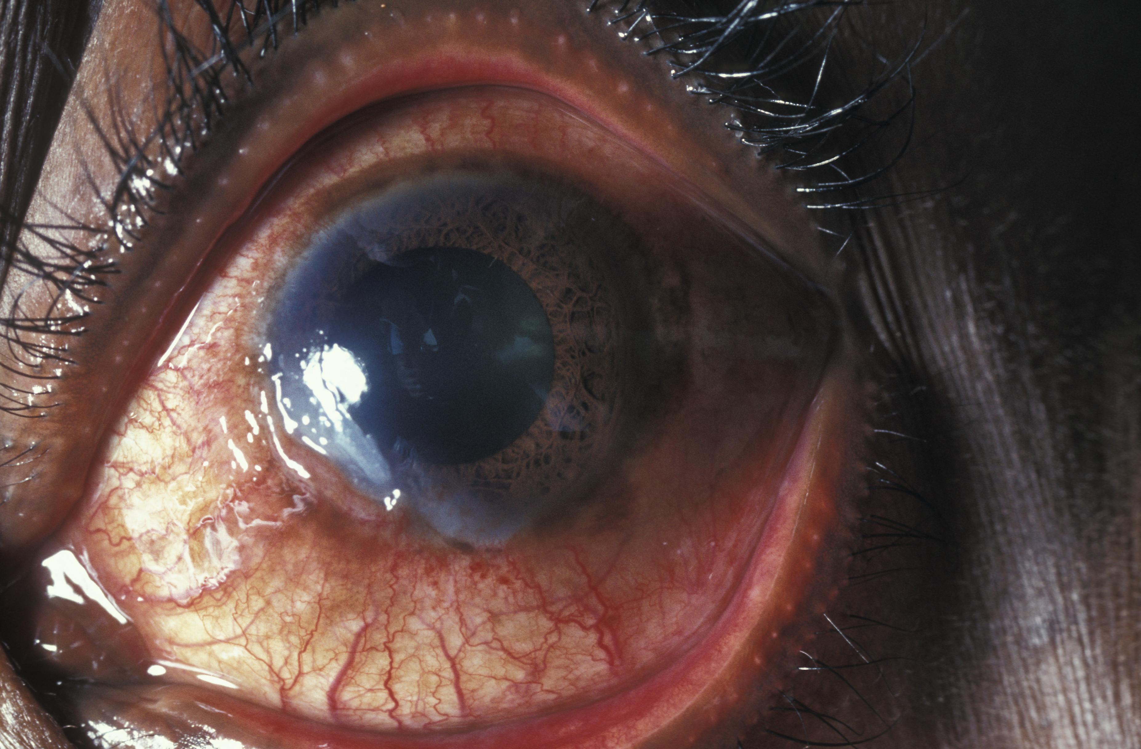 Кератит - симптомы болезни, профилактика и лечение кератита, причины заболевания и его диагностика на eurolab