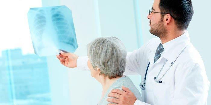 Пневмосклероз: что происходит с легкими, сколько живут при этом заболевании?