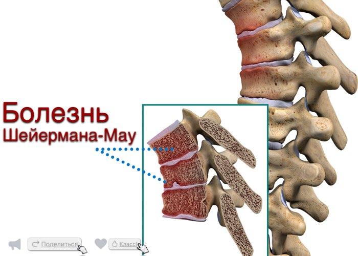 Симптомы болезни шейермана-мау и методы лечения синдрома