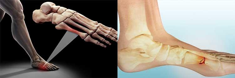Основы питания при переломах костей