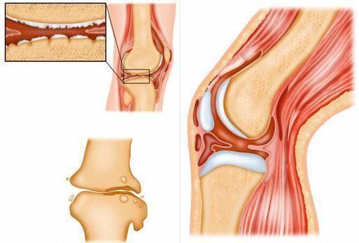 Туберкулез костей и суставов: симптомы, первые признаки и лечение | все о суставах и связках
