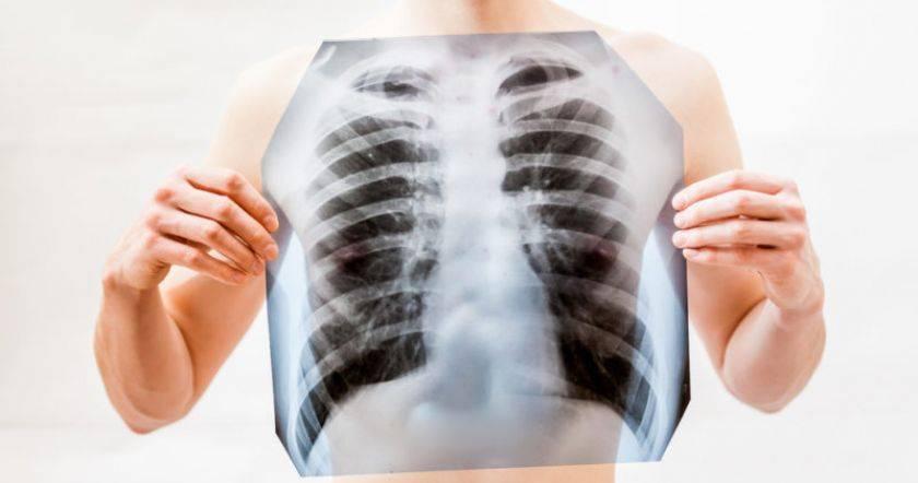 Как протекает пневмония: симптомы у детей. клиника и особенности течения разных видов пневмоний