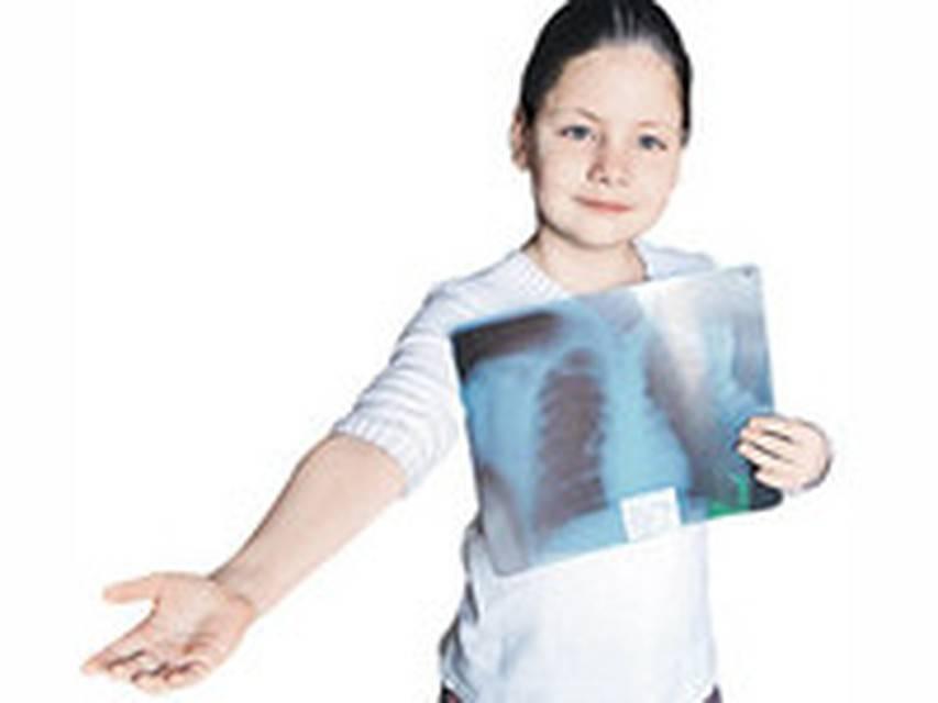 Chto-takoe-gripp - запись пользователя марико (mirotvorka) в сообществе здоровье - от трех до шести лет в категории анализы, узи, рентген - babyblog.ru