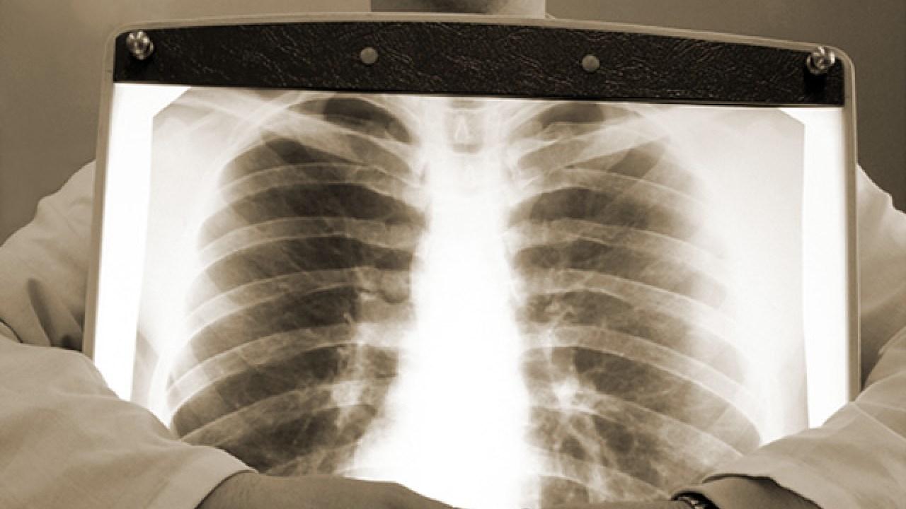 Рентген легких при туберкулезе: инфильтративном, милиарном, очаговом