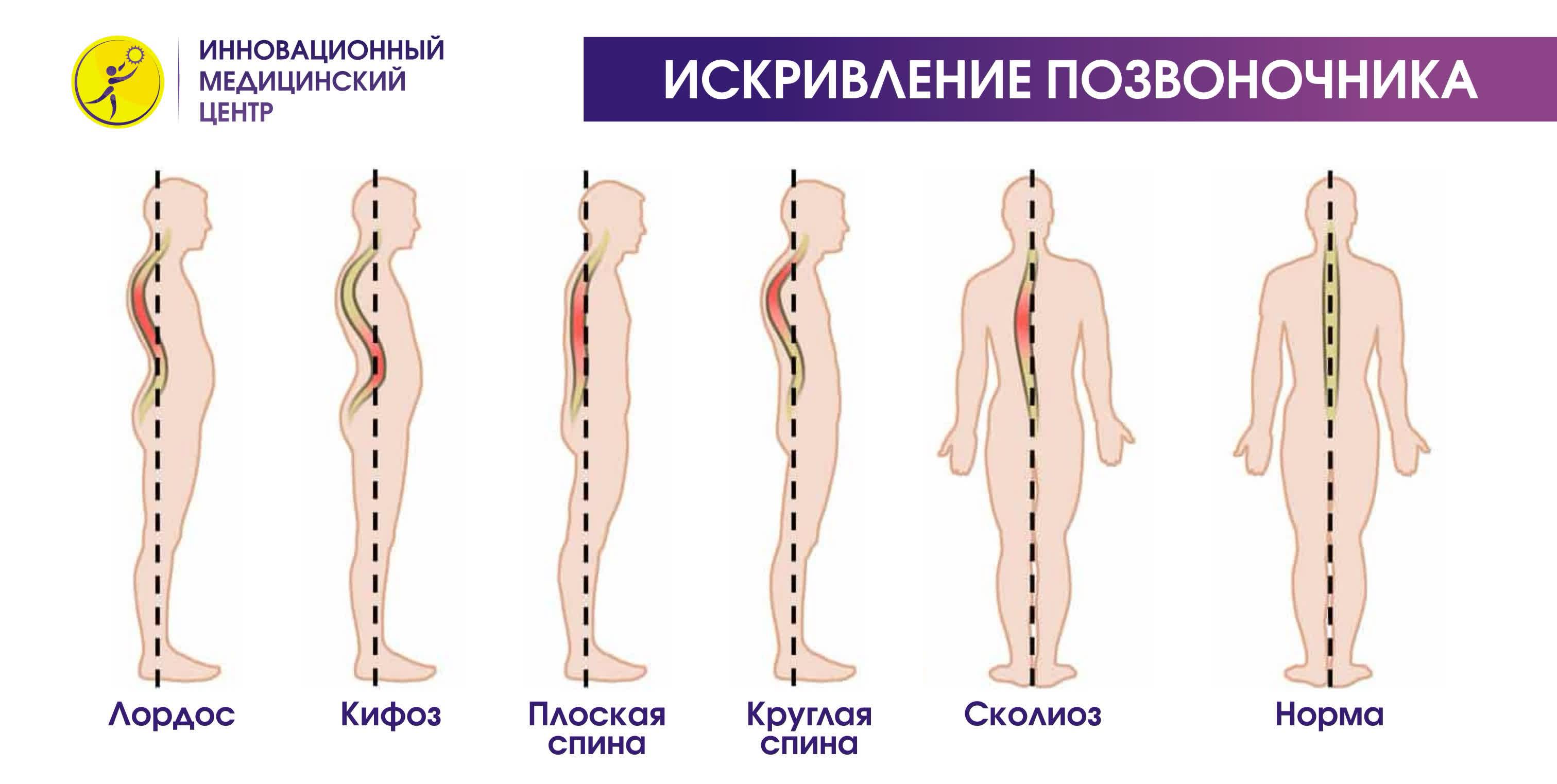Выпрямление физиологического кифоза грудного отдела позвоночника
