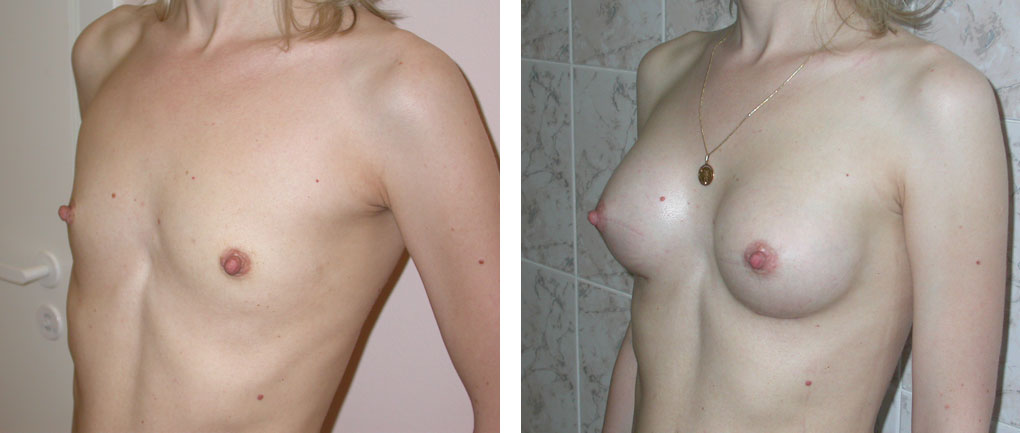 Маленькая грудь. маммопластика для увеличения груди: как проходит, сколько стоит, реабилитация, показания и противопоказания