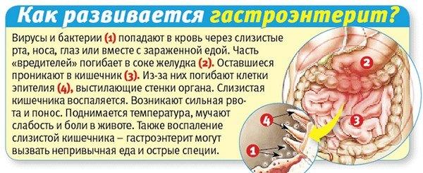 Гастроэнтерит: причины, симптомы и лечение