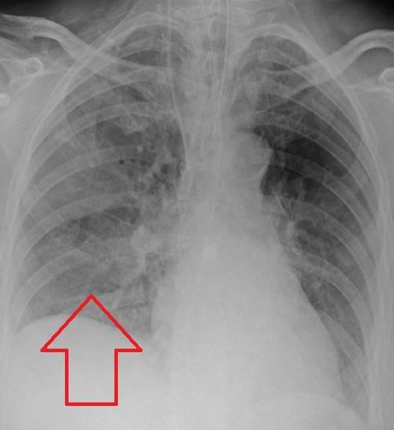 Пневмония у новорождённых — сколько лечится и какие причины?