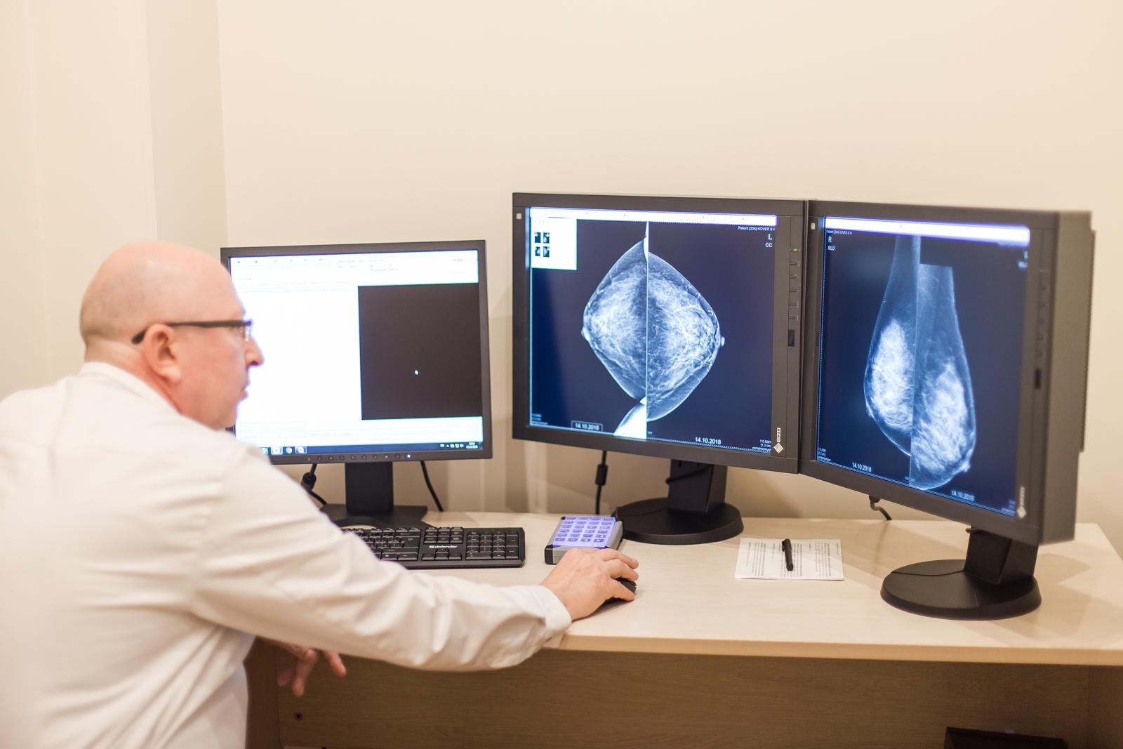 Маммография или мрт молочных желез: сравнение и какой метод лучше