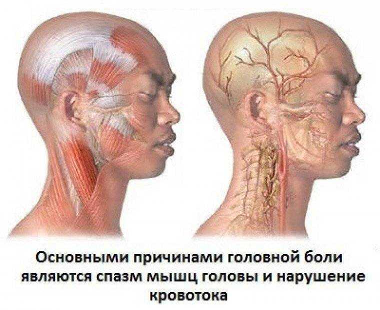 Что делать, если болит голова сзади, в затылочной части, отдает в виски, шею, глаза