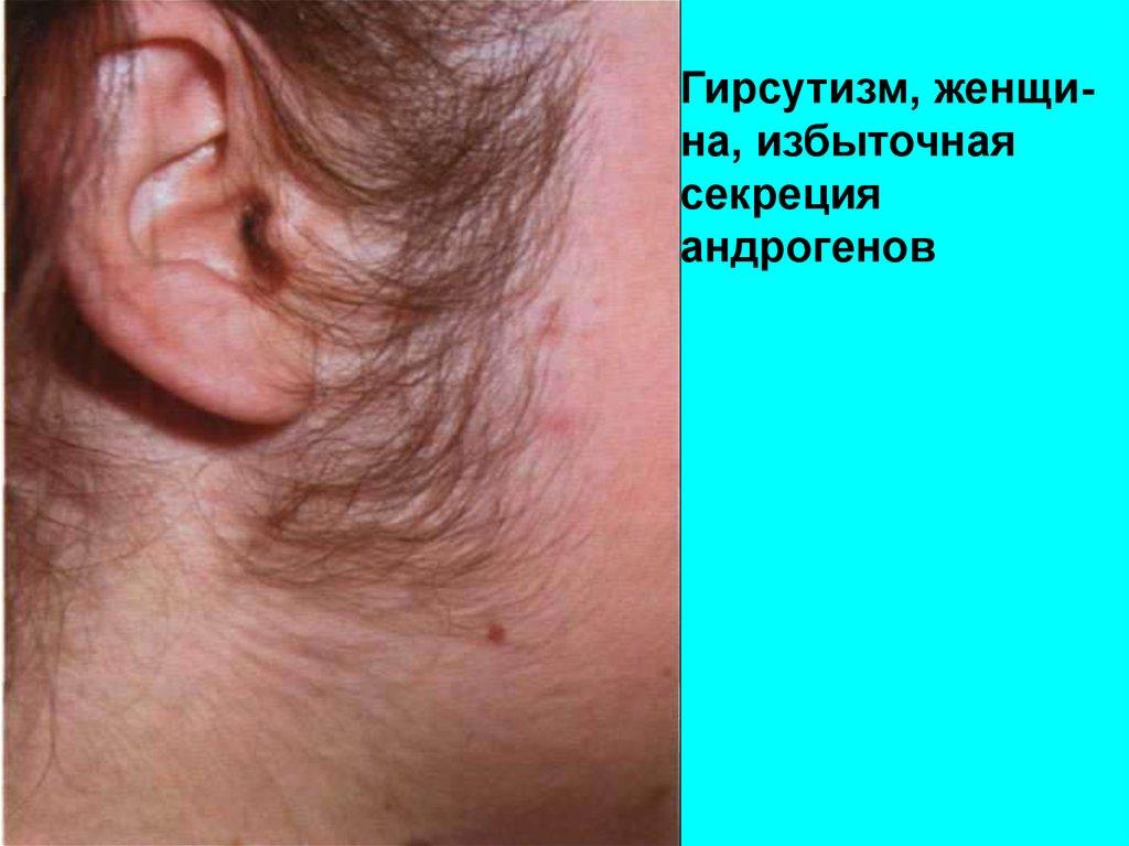 Андрогены у женщин — избыточный рост волос (гирсутизм), акне